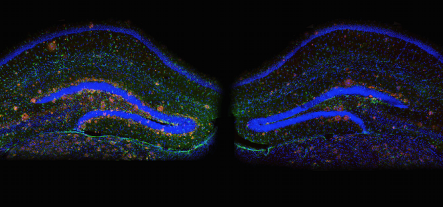 Reversing Alzheimer's symptoms in mice