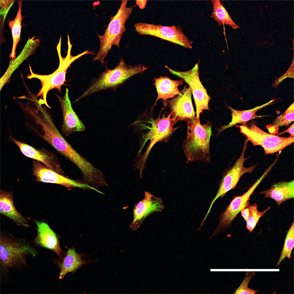 Long, thin,spiny cells stained yellow and blue appear above a black background