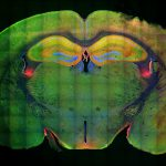 A cross section of a mouse brain stained in a rainbow of colors